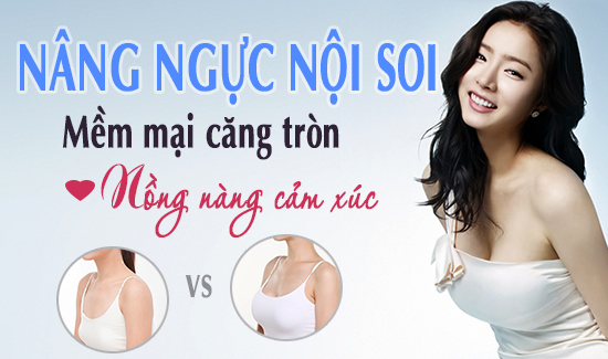 Nâng ngực nội soi Duale Face đẹp an toàn