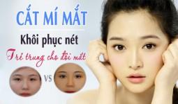 Phẫu thuật cắt mí mắt Hàn Quốc không phục nét xuân cho đôi mắt