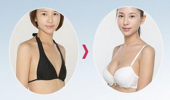 Thu Lan trước và sau khi nâng ngực nội soi Dual Face