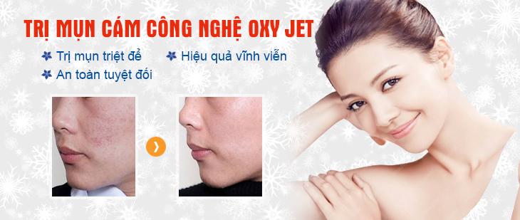 Điều trị mụn cám tận gốc ở vùng mũi, cằm và 2 gò má