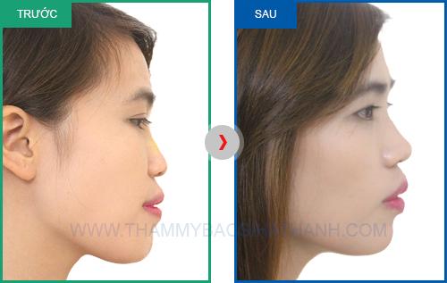 Trước sau phẫu thuật nâng mũi khoongn cần phẫu thuật