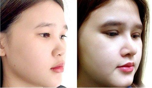Phương pháp sửa mũi hếch hiệu quả