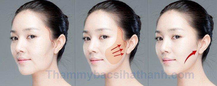 Căng da mặt bằng chỉ vàng giúp da mặt căng mịn