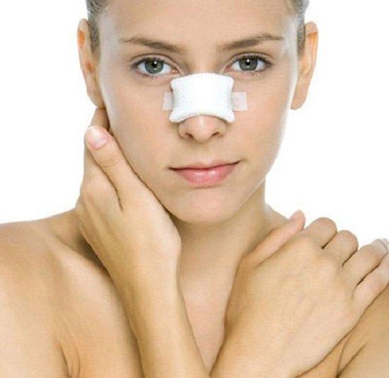 Biến chứng có thể gặp khi nâng mũi