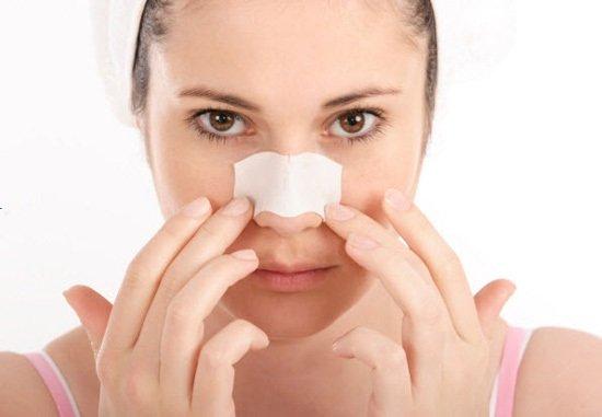 Mũi dị ứng chất liệu sau khi nâng mũi