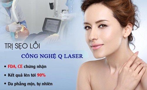 Trị sẹo lồi triệt để với công nghệ Q Laser