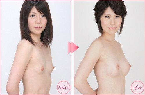 Cách chăm sóc sau khi nâng ngực nội soi
