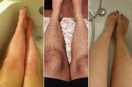 Nguyên nhân dẫn đến rậm lông chân ở