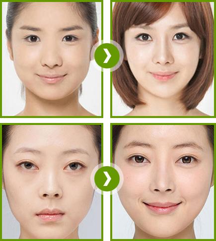 Nguyên nhân cách khắc phục biến chứng nâng mũi