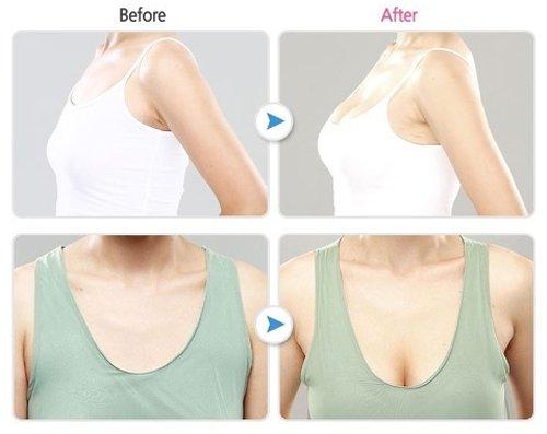 Thời điểm thích hợp để bạn nâng ngực