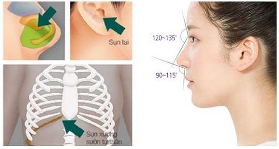 An toàn không khi nâng mũi bằng sụn tự thân