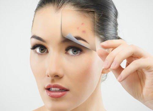 Chữa trị sẹo thâm trên mặt, sẹo lõm sau khi trị mụn