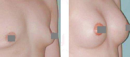 Sự khác biệt nâng ngực nội soi và sa trễ
