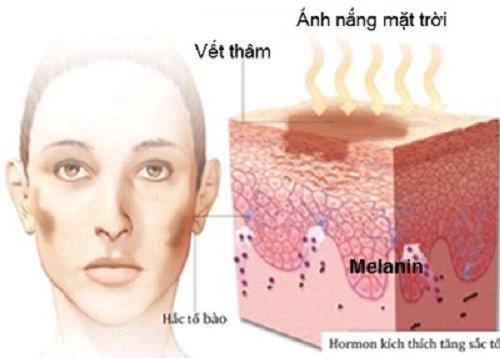 Sẹo thâm trên mặt và cách chữa trị sẹo