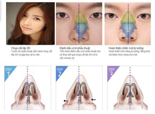 Công nghệ dựng hình 3D trong nâng mũi