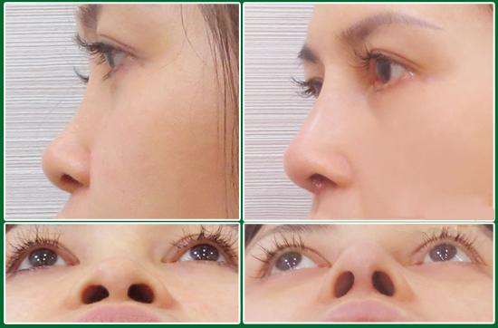 Nâng mũi sụn tự thân an toàn