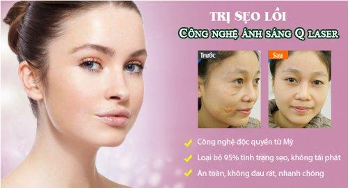 Q Laser điều trị sẹo lồi hiệu quả