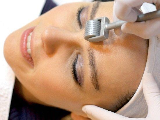 Điều trị sẹo lõm bằng công nghệ lăn kim
