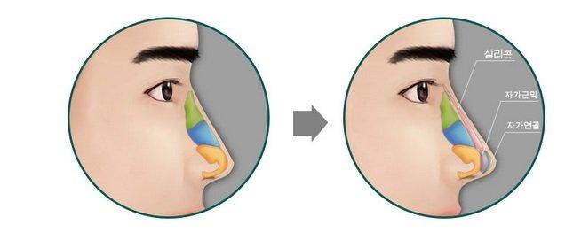 Phẫu thuật thu gọn cánh mũi cho nam