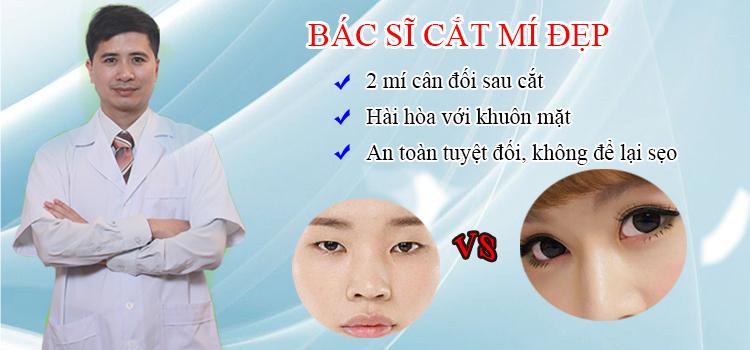 Bác sĩ cắt mí mắt đẹp tại Hà Nội