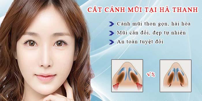 Phẫu thuật cắt cánh mũi giá bao nhiêu tiền