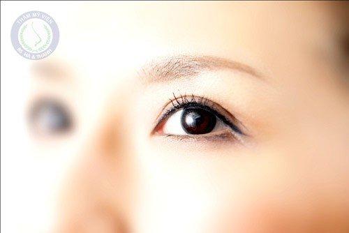 Hiểu để biết cắt mí mắt có hại gì không