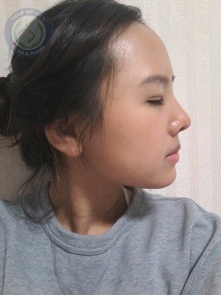 Kim Ngân sau khi nâng mũi Hàn Quốc và bấm mí 1 tháng