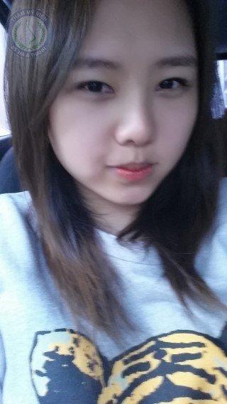 Cùng ngắm vẻ đẹp của Kim Ngân sau nâng mũi Hàn Quốc và bấm mí