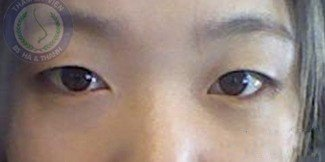 Thu Huyền trước khi cắt mí mắt