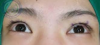 Thu Huyền cắt mí mắt tại Hà Thanh