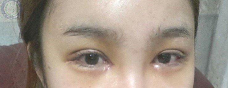 Thu Huyền sau khi cắt mí mắt