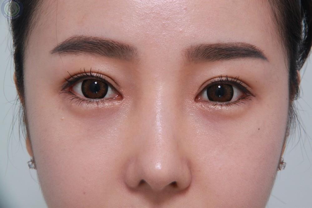 Thu huyền say 2 tháng thực hiện cắt mí mắt tại Hà Thanh