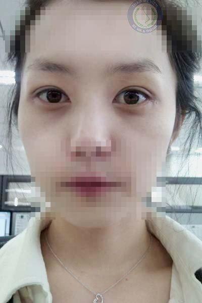 Mí mắt Lan Anh sau 2 tuần cắt mí và lấy mỡ mí mắt