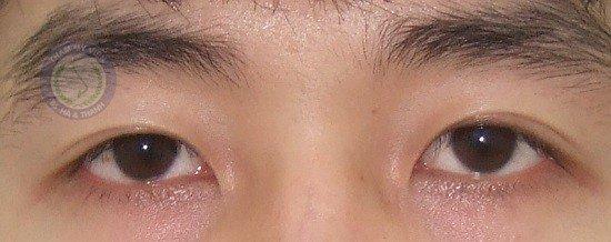Sửa mí mắt bị hỏng do mí bị sụp và trợn