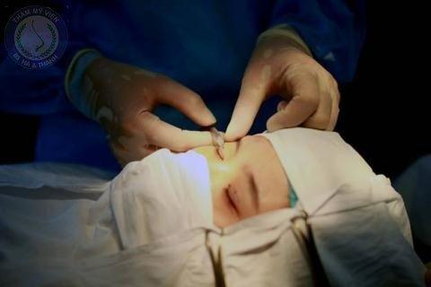 Bác sĩ tiến hành gây tê cho Phương Linh