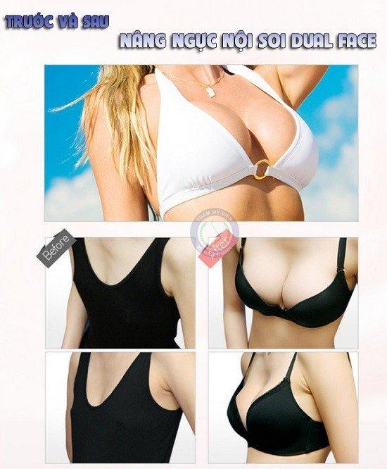 Lưu ý trước và sau khi nâng ngực