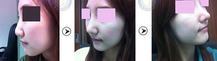 Thanh Nhàn trước và sau khi nâng mũi Hàn Quốc