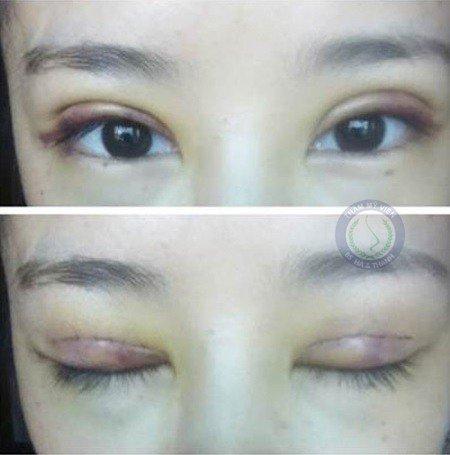 Biến chứng mắt bị sưng sau khi cắt mí