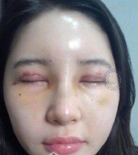 Những biến chứng sau khi cắt mí mắt