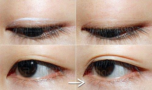 Sử dụng keo kích mí mắt có an toàn không