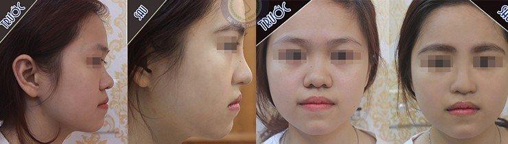 Khách hàng nâng sống bọc sụn và chỉnh sửa đầu mũi
