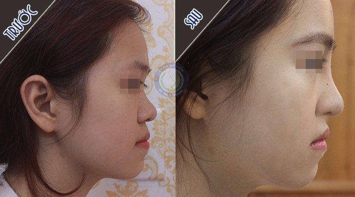 Dáng mũi chụp nghiên trước và sau nâng