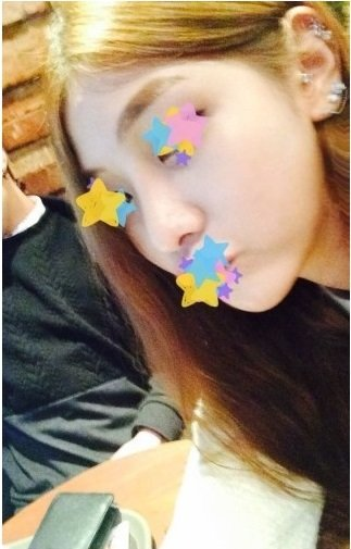 Mũi đẹp xinh nhờ nâng mũi S line