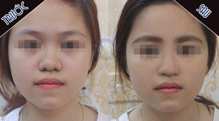 ảnh chụp chính diện dáng mũi trước và sau nâng mũi