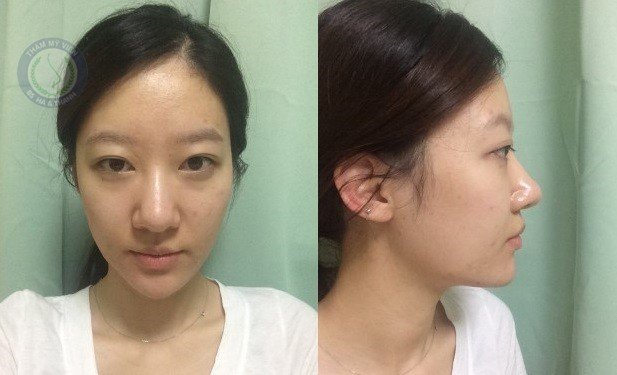 Cánh mũi trước khi cắt của Hồng Khuyên
