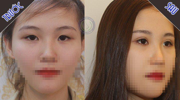 Đăng P.Th trước sau bấm mí mắt Hàn Quốc chụp nghiêng