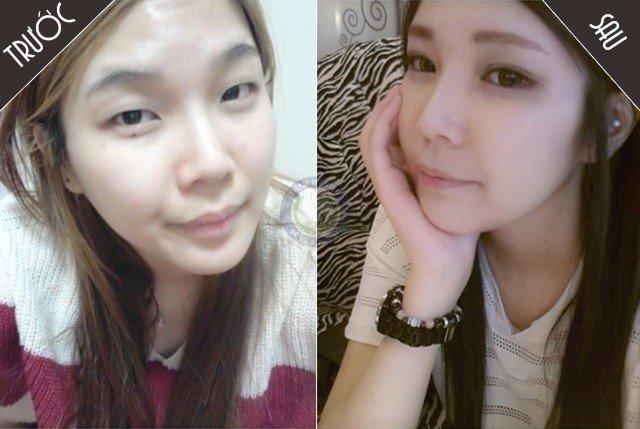 Hình ảnh trước và sau khi cắt mí mắt Hàn Quốc