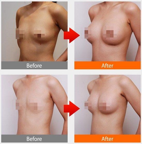Kim Yến thực hiện nâng ngực nội soi