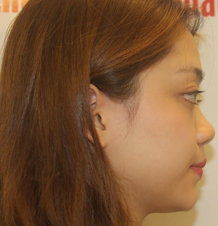 Hồng Minh tâm sự trước khi nâng mũi bọc sụn Hàn Quốc