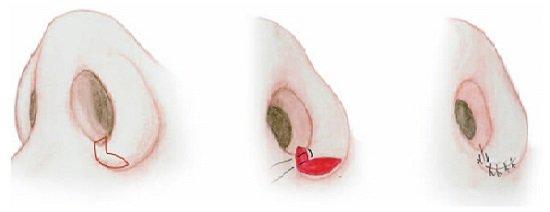 Kỹ thuật cắt cánh mũi tại Hà Thanh